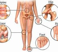 Clues on Arthritis