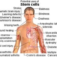 Embroynic stem cell